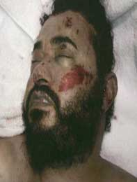 The dead Abu Musab al-Zarqawi.