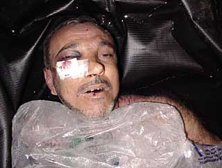Manadel al-Jamadi in a body bag on November 4, 2003.