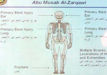 Al-Zarqawi's injury report after his death in 2006. He has both legs but there is a recent fracture in one leg.