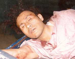 Abu Zubaida pictured shortly after he was captured in Pakistan. He appears to be bloodied and on some type of stretcher.