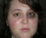 A photograph of Ashley Todd, with a backwards 'B' scratched into her face. Todd claims an Obama supporter beat her and scratched the letter into her face.