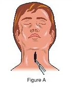 Excerpt from a diagram of a tracheotomy.