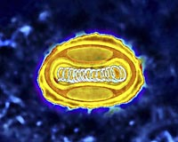 An enhanced photo of the variola virus, which causes smallpox.