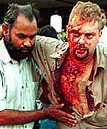 A bloody victim of the Sheraton Hotel bombing.